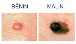 asblcancer7000.be | MÉLANOME BÉNIN OU MALIN : COMMENT SAVOIR